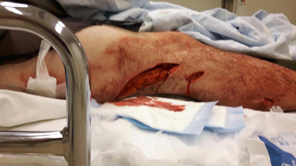 Jagare allvarligt skadad av vildsvin