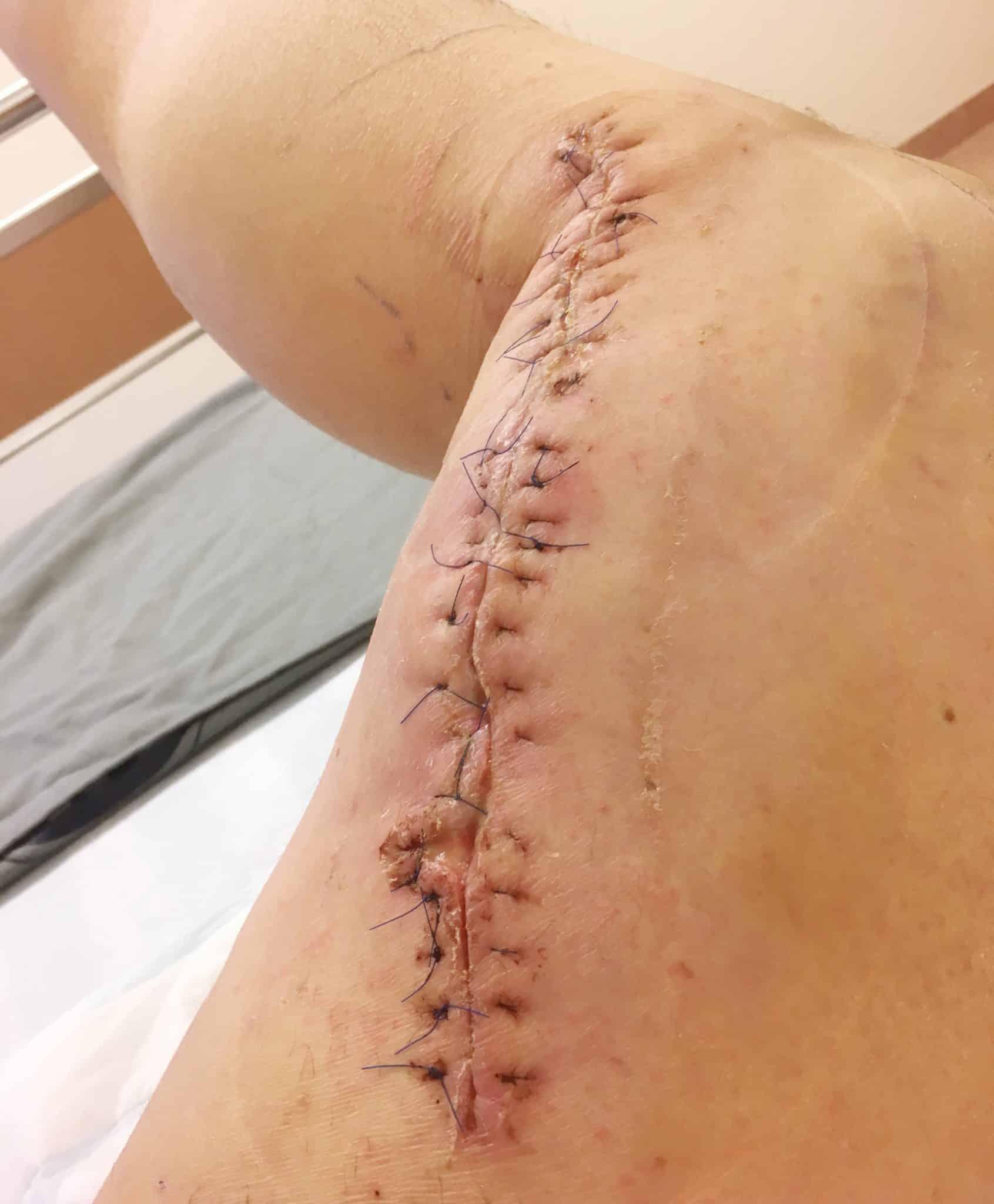 Beten gick in under knäet och sprättade upp nästan till ljumsken. Såret i det andra benet var lika djupt men mer cirkelformat. Utan jaktkamraternas snabba ingripande är Anders Ahlqvist säker på att han inte hade överlevt. Foto: Privat