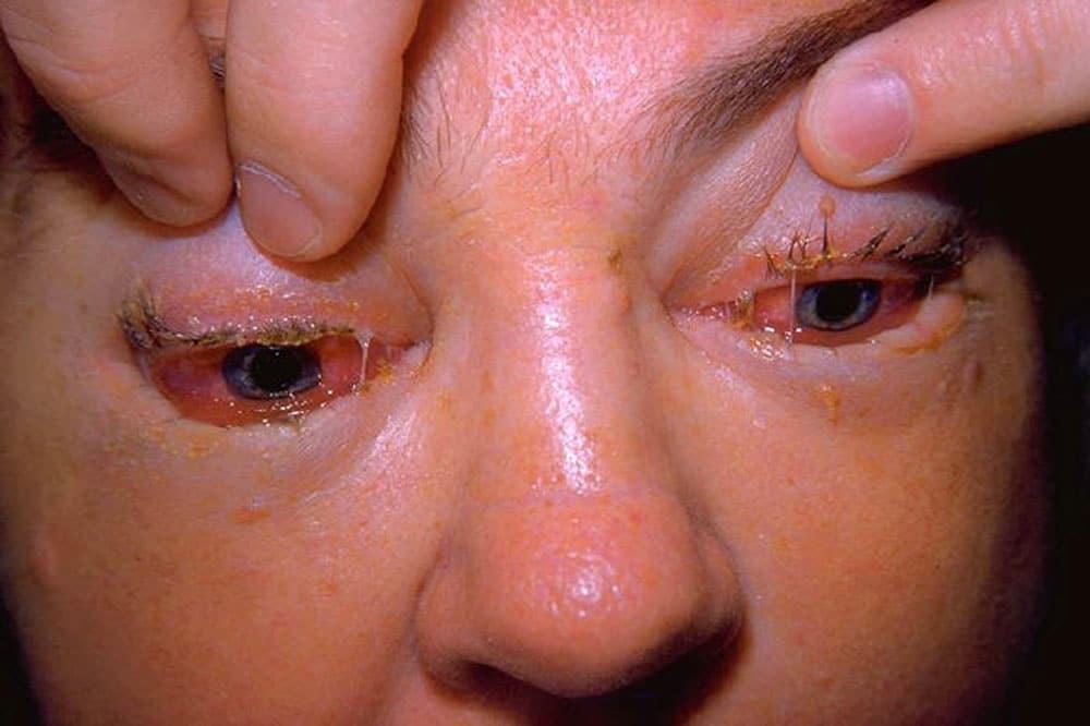 Symtom på trikinos som orsakas av trikiner kan vara svullnad kring ögon, muskelvärk och diarré. Foto: Thom Emory