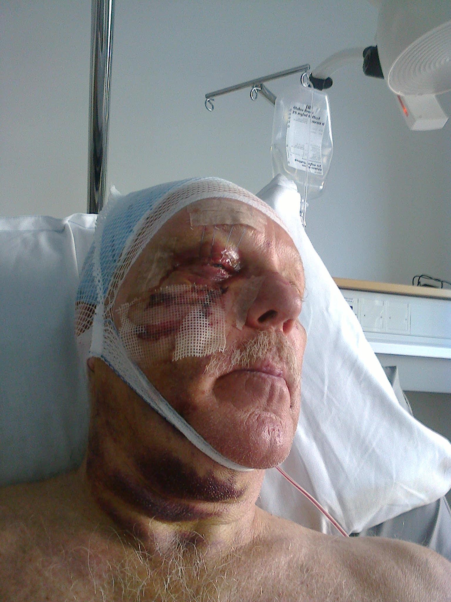 Christer Svensson lider ännu av sviterna efter den otäcka skjutolyckan i somras.  Foto: Privat